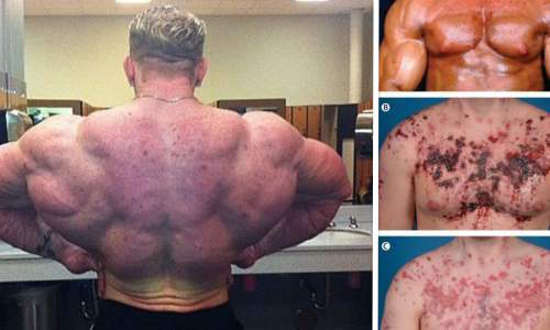 3 Things Everyone Knows About how to inject steroids That You Don't